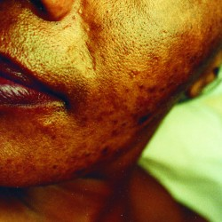 Skin lightening cream damage